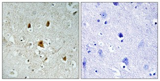 Abl1 (phosphor Tyr204) Rabbit pAb