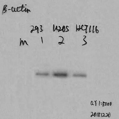 β-actin Monoclonal Antibody